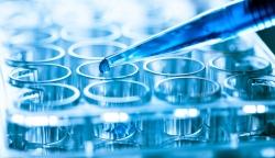 羊痘病的诊断及药物治疗